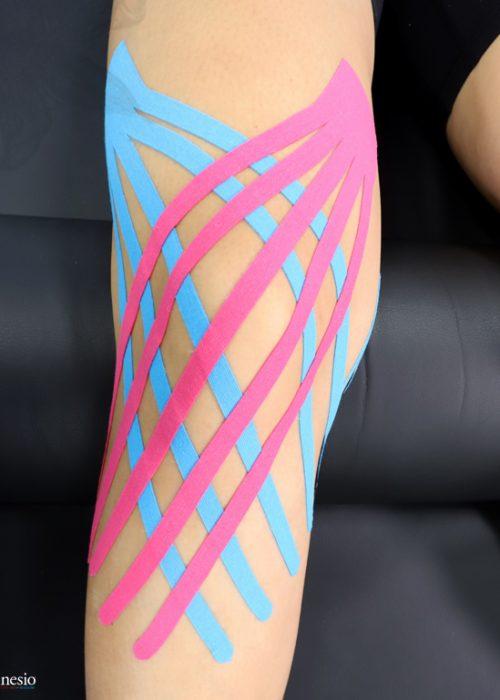 Kinesio-Tape-Fan-Cut-Knee-Blue-Pink-Portrait